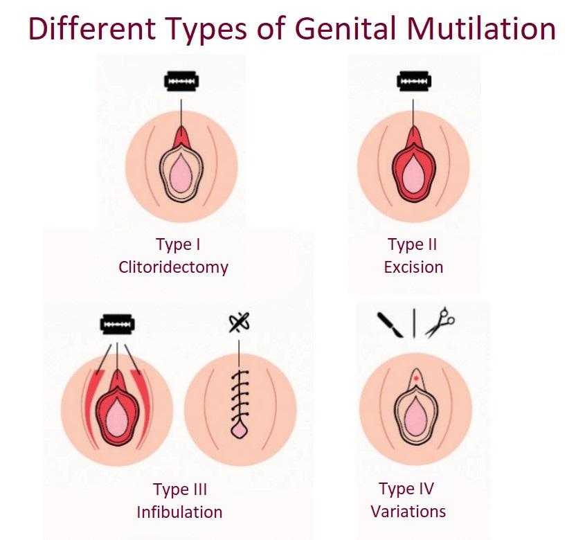 Les différents types de mutilations génitales